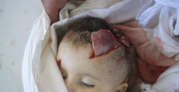 Siria: il costo del non far nulla